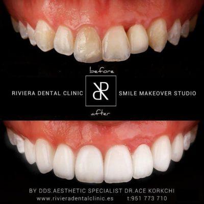 Smile make over Studio Marbella-2