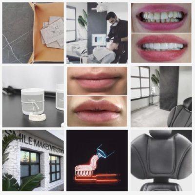 Smile make over Studio Mijas